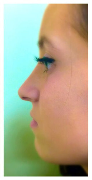 After Rhinoplasty