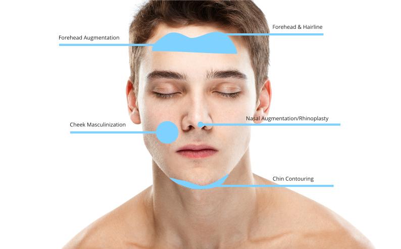Facial Feminizing & Masculinization